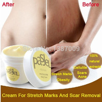 Cream For Stretch Marks And Scar Removal Powerful To Stretch Marks Maternity Skin Body Repair Cream Remove Scar Care Postpartum (Size: 50 g, Color: Orange) = 1945732676