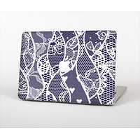 "The Dark Blue & White Lace Design Skin Set for the Apple MacBook Pro 13"" with Retina Display"