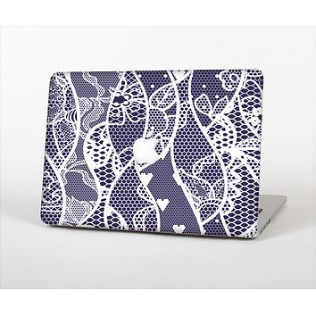 """The Dark Blue & White Lace Design Skin Set for the Apple MacBook Pro 13"""" with Retina Display"""