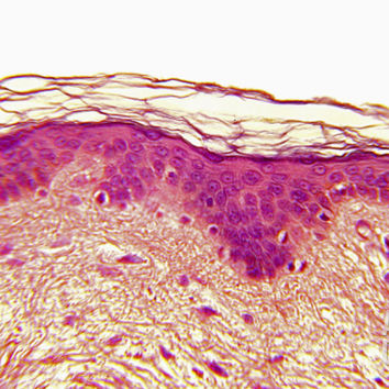 Human Skin Histology, Caucasian Skin Photographic Print by Fred Hossler at Art.com