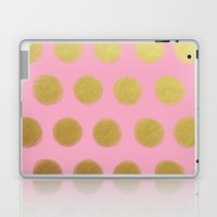 pinky gold; Laptop & iPad Skin by Pink Berry Patterns