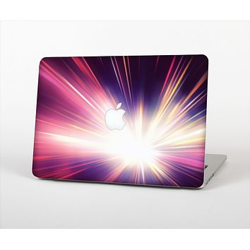 """The Pink Rays of Light Skin Set for the Apple MacBook Pro 13"""" with Retina Display"""