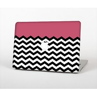 """The Solid Pink with Black & White Chevron Pattern Skin Set for the Apple MacBook Pro 13""""   (A1278)"""