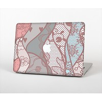 """The Pink & Teal Lace Design Skin Set for the Apple MacBook Pro 13"""" with Retina Display"""